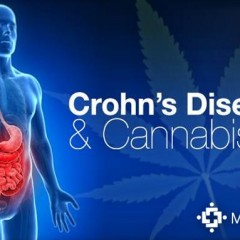 Israeli Study Suggests Cannabis Relieves Crohn's Disease