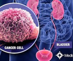 Whole-Plant Cannabis Use Associated with Decreased Likelihood of Developing Bladder Cancer