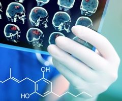 Une étude internationale démontre les effets neuroprotecteurs du phytocannabinoïde THCA