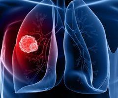 Des « nano-drones » livreurs de cannabinoïdes pour combattre le cancer du poumon