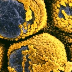 Peut-on utiliser le cannabis pour traiter le syndrome des ovaires polykystiques?