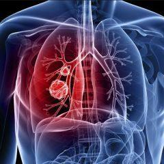 Étude : THC et CBD inhibent la prolifération des cellules cancéreuses dans le cancer du poumon